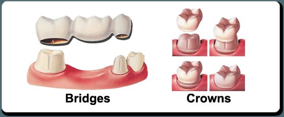 Crowns, Bridges