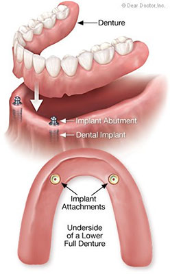 Dental Implants in Nevada