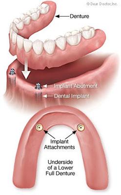 Dental Implants in Nevada