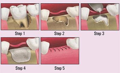 Extractions & Bone Augmentations